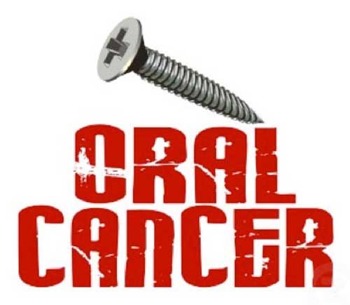 Screw Oral Cancer