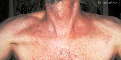 What was called radiation rash